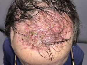 Wide scarring alopecia area on the scalp with perifollicular pustules and crusts.