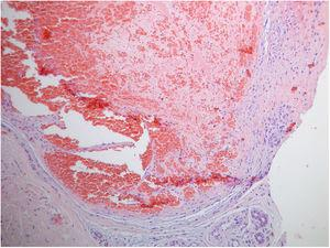 Hematoxylin-eosin, ×100.