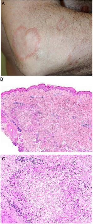 A, Granuloma annulare. An arm showing several erythematous annular plaques with a slightly raised border and clear center. B, Skin showing 2 areas of collagen degeneration and interstitial changes in the reticular dermis surrounded by a band-like inflammatory infiltrate. The superficial dermis and epidermis are preserved. Note also the perivascular lymphocytic crowns and diffuse increase in fibroblast density (hematoxylin-eosin, original magnification ×40). C, Note the central area of disordered collagen accompanied by acid mucin deposits and surrounded by an infiltrate of macrophages, palisading epithelioid cells, fibroblasts, lymphocytes, and occasional eosinophils. Dense perivascular lymphocytic crowns without vasculitis are visible (hematoxylin-eosin, original magnification ×200).