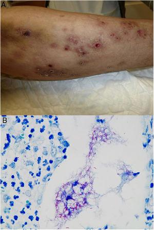 Example of Mycobacterium chelonae infection. A, Painful, suppurative nodular lesions with superficial ulcers and crusting (photo courtesy of Dr Rodríguez Blanco). B, Mchelonae infection. Microorganisms sometimes tend to form clusters in areas of suppuration, where they can be demonstrated by Ziehl-Neelsen staining (Ziehl-Neelsen, original magnification ×1000).