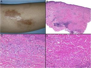 Necrobiosis lipoidica. A, Erythematous-yellowish infiltrative plaque with a wax-like appearance. The center of the plaque is paler and has an atrophic appearance. B, Panoramic view showing a focal inflammatory infiltrate arranged in layers that are more or less parallel to the epidermis, together with areas of thickened, intensely eosinophilic collagen. Note the periadnexal lymphoid aggregates in the deep part of the biopsy specimen (deep dermis) (H&E, original magnification x40). C, Higher-magnification view showing an interstitial granulomatous inflammatory infiltrate arranged between bundles of thickened, degenerated collagen. Several multinucleated histiocytes are also visible (H&E, original magnification x200). D, High-magnification view of the other part of the biopsy specimen showing a palisaded granuloma centered by an area of clearly degenerated collagen (H&E, original magnification x400). H&E indicates hematoxylin-eosin.
