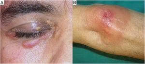 Clinical appearance of necrobiotic xanthogranuloma. A, Hallmark clinical presentation of necrobiotic xanthogranuloma featuring erythematous-yellow papules and plaques on the eyelid. B, Extracutaneous location in the form of an ulcerated yellow-orange plaque.