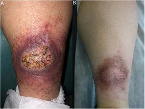 Crohn disease. Erythematous, ulcerated, infiltrative plaque measuring 6cm on the calf of a patient with Crohn disease (A); this improved over 6 months to form an erythematous, hyperpigmented, infiltrative plaque (B).