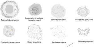Schematic representation of the main types of granulomas.