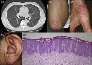 Examination by lung computed tomography revealed lymph node adenopathy.