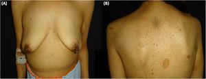 Clinical presentation. A, Abdominal deformity caused by a mass on the right flank. B, Multiple freckles and several café au lait spots and neurofibromas on the trunk.