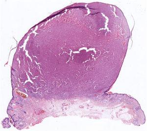 Well-defined dermal tumor with a polypoid appearance (hematoxylin–eosin).
