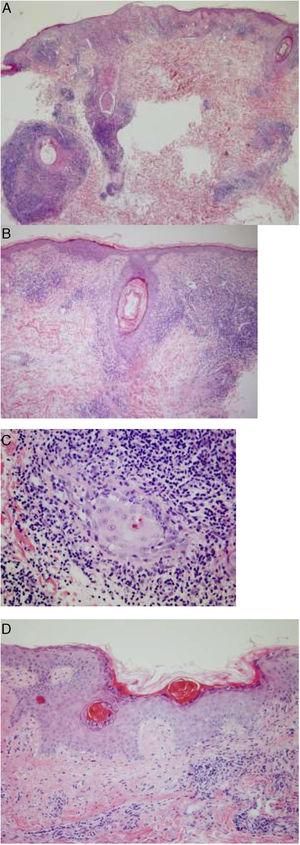 Histopathology of one of the lesions. A and B, Dense inflammatory infiltrate in the epidermis and pilosebaceous follicles. C, Infiltrate composed mainly of lymphocytes and histiocytes, with few plasma cells. D, Areas of epidermal atrophy, parakeratosis, and thickening of the basement membrane, alternating with other areas in which the architecture is better preserved.