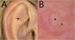 A, Clinical presentation of the lesion on the right antihelix. B, Dermoscopic image of the lesion using contact dermoscopy and 60× magnification (image acquisition was very difficult given the very small size of the lesion). Slightly whiteish central area without structure (*) and radially distributed hairpin vessels (^).