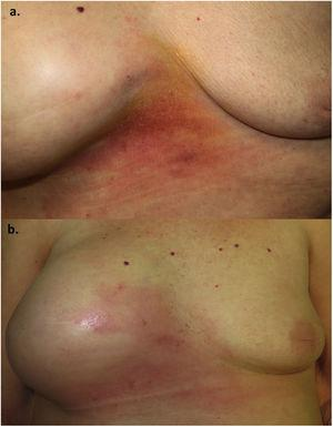 A, Indurated erythematous plaque with slight scaling in the intermammary area. B, Note the growth of the erythematous plaque and the considerable increase in volume of the right breast after 1 month.