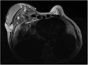 Magnetic resonance image of a retroprosthetic lobulated mass measuring 14×10×7cm with irregular margins in addition to peripheral enhancement and central necrosis and invasion of the chest wall through to the mediastinum.