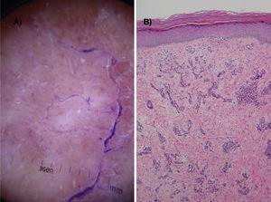 A, Dermoscopic image showing dots and homogeneous red blood vessels, scaling, white structureless areas, and a peripheral ink-stained collarette. B, Proliferation of dilated capillaries in the papillary dermis without atypia and edema (hematoxylin-eosin, original magnification ×10).