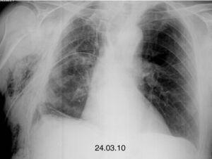 Reexpansion of the right pneumothorax.