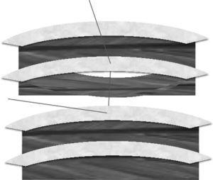 Modified intracostal suture technique: the stitches pass through the cephalic and caudal ribs and along the space left by the flap, over the intercostal muscle and the neurovascular bundle; this impedes its compression.