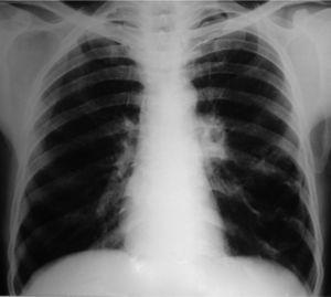 Posteroanterior chest radiograph at the initial presentation showing the presence of a cyst in the left lower lobe.