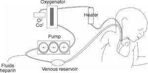 Diagram of the elements making up a conventional ECMO circuit.