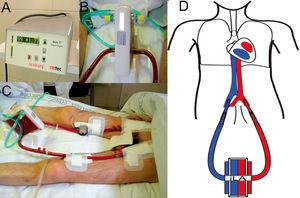 Support treatment with pumpless AV iLA in a patient with bronchiopleural fistula and severe respiratory failure. Orotracheal intubation, mechanical ventilation with PEEP at 10 cm H2O and tidal volume of 1 ml/kg ideal body weight. A) Exchange membrane and arterial and venous cannulations. B) Close up of the iLA connected to arterial and venous lines and the oxygen intake. C) Flow measure across the system, in this case 1.77 litres of blood per minute. D) AV cannulation diagram for treatment with an interventional lung assist system (iLA).
