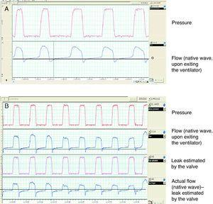 Presentation of native flow–time and pressure waves in a single-tube system with a controlled leak valve and support pressure mode. Note that in (A) the inspiratory flow is much greater than expiratory flow, with regard to point 0. In (B), the native wave has been corrected, subtracting the calculated leak flow.