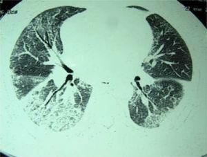 Bronchiectasis.