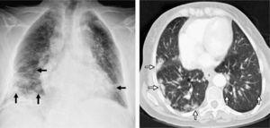 On the left, chest radiography after surgical biopsy revealing multiple bibasilar nodules predominantly on the right side (black arrows). On the right, computed tomography (CT) axial cut with pulmonary window showing bibasilar peripheral hyperdense nodules with poorly outlined edges that are larger in size in the right hemithorax (white arrows).