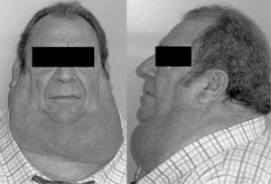 Symmetric accumulation of fatty tissue in the neck of a patient diagnosed with multiple symmetric lipomatosis.