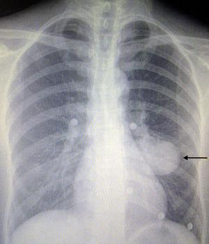 Pneumocytoma in the left hemithorax on the X-ray (arrow).