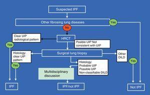 Diagnostic algorithm for idiopathic pulmonary fibrosis. For abbreviations, see text.