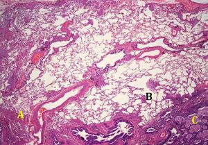 Usual interstitial pneumonia pattern in lung biopsy: peripheral fibrosis (A) with foci of fibroblastic activity in interface areas (B) and microcystic honeycombing foci (C).