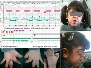 (A and B) Characteristic facies of Apert syndrome with facial hypoplasia. (C) Syndactyly and sclerodactyly. (D) Patient's baseline polysomnography showing predominance of obstructive apneas and recording from autoCPAP connected to the polygraph flow channels.