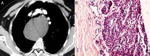 (A) The chest computed tomography with contrast medium shows a large mediastinal mass (12×14cm) without contrast enhancement causing anterior displacement of the large vessels and trachea, and anterolateral displacement of the esophagus. (B) Histopathological examination revealed a pseudocystic wall, which contained hypercellular parathyroid tissue (hematoxylin–eosin staining, original magnification 400×).