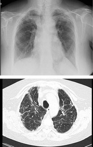 Pulmonary fibrosis changes in upper lobes of a patient diagnosed with restrictive allograft syndrome (chest X-ray and chest CT).
