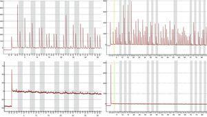 p16/INK4a pyrograms of a valid sample (top panels) and an invalid sample (bottom panels). Pyrosequencing was performed in two different reactions to cover the 18 CpG sites of the island: pyrograms on the left show the first seven CpG sites, and on the right, the last eleven CpG sites. The gray bars in the pyrograms indicate each CpG site.
