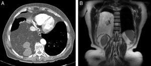 (A) Axial chest CT image showing a heterogeneous adipose mass in the right hemithorax. Esophageal compression and vascular involvement can be seen. (B) Chest MRI with coronal T1-weighted sequence showing a large adipose mass with several cystic and solid nodules.
