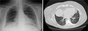 Posteroanterior chest X-ray and high resolution computed tomography (HRCT) showing improvement of infiltrates with persistent ground-glass opacities in the HRCT slice.