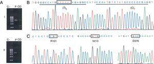 Identification of the null allele PI*Q0ourém. (A) Selective amplification of the PI*non-S allele in overlapping amplicons that cover the entire coding region of the SERPINA1 gene (NC_000014) and the corresponding introns. Fragment i (2458 bp; upstream of the non-S site) was amplified with the primer pair TACTTGGCACAGGCTGGTTT//TACTTGGCACAGGCTGGTTT, and fragment ii (2580 bp; downstream of the non-S site) with the GGGAAACTACAGCACCTGGA//GGCAGGGACCAGCTCAAC pair. Position 3′ of the allele-specific primer that discriminates the PI*S allele is highlighted in bold; this required optimization of the annealing temperature during the PCR (70°C) (C: negative control; CD: discrimination control, consisting of gDNA from an individual with the PI*SS genotype; P: gDNA from the patient in case 1). (B, C) Sequencing electropherograms for the PI*non-S allele amplified by allele-specific PCR. The site affected by the insertion of a thymine nucleotide is indicated by a box; the binding sequences of the probes designed for detection of this mutation are underlined. C shows the codons and amino acids that define the M3 genetic background.2