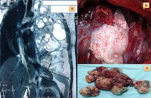 (a) Chest magnetic resonance image of a massive tumor in the left hemithorax, with fat, cystic spaces and organoid structures; (b) perioperative image of the tumor with hair-like structures, and (c) macroscopic image of the fully resected teratoma.