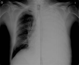 Chest X-ray showing metal guide-wire in the pleural cavity.