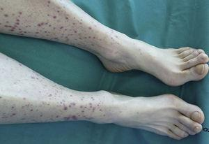 Palpable purpura lesions on the legs and nail clubbing in the toes.