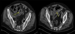 Abdominal computed tomography: thickening of a segment of the small intestinal wall (jejunum), inflammatory changes, and adjacent extraluminal air bubbles.