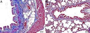 (A, B) Normal lung tissue architecture in control rats by light microscopy, Masson's trichrome stain.