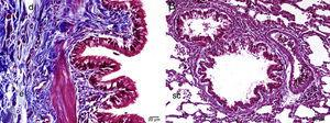 Histopathological examination by light microscopy of lung tissue in MI group stained by Masson's trichrome A: f: fibrosis, e: edema, d: degenerating cells, B: sc: regular appearance in saccus alveolaris, MI: methotrexate+infliximab applied group.