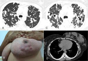 High-resolution computed tomography of the upper lobes (A) revealed small confluent nodules in both lungs. Physical examination of the left breast (B) showed palpable and visible lumps in the inner quadrants. The right breast was normal. Follow-up computed tomography at the same level (C) demonstrated worsening of the pulmonary lesions, with the appearance of multiple cavitating masses in the upper regions of both lungs. A chest computed tomography with mediastinal window setting showed the lesions in the left breast (D).