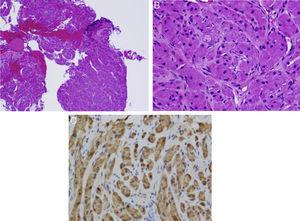 (A) An area of bronchial epithelium can be seen on lower magnification (top right, darker area). The rest of the sample consists of tumor tissue. (B) Fusiform cells and granular cytoplasma can been seen on greater magnification. Bronchial schwannoma or granular cell tumor. (C) Immunohistochemistry positive for S100 (darker staining).