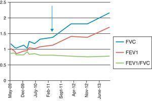 Test di funzionalità polmonare tra maggio 2009 e giugno 2013. La freccia indica l'inizio del trattamento con rituximab. FEV1: volume espiratorio forzato in 1 secondo; FVC: capacità vitale forzata.