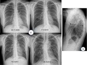 (a) Chest radiograph (posterior anterior view), showing evolution of pleuroparenchymal fibroelastosis, characterized by progressive loss of volume in upper lobes, upper bilateral hilar retraction, and biapical pleural thickening. (b) Chest radiograph (lateral view), showing flattened thoracic cage; note how the anterior posterior diameter of the chest (arrow) has narrowed relative to the craniocaudal diameter.