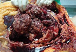 Image of the thoracic cavity during autopsy: multiple nodular neoplastic implants are seen in the visceral pleura, along with a moderate amount of serous, bloody pleural fluid.