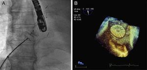 Spectroscopy image in hemodynamics unit. Unfolded Amplatzer® Cribriform 25mm occluded before release in the interatrial septum (A). Transesophageal echocardiogram 3-dimensional image showing device after percutaneous closure of the PFO (B).