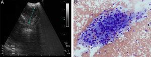 (A) Endobronchial ultrasound view of the suspicious lesion. (B) Granulomatous formation (hematoxylin–eosin staining ×200).