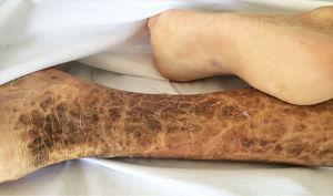 Photograph of the posteromedial aspect of the patient's right leg. Typical ichthyosis lesions are observed: dry, rough skin, with hyperpigmented, brownish scales, with polygonal, free, irregular margins.