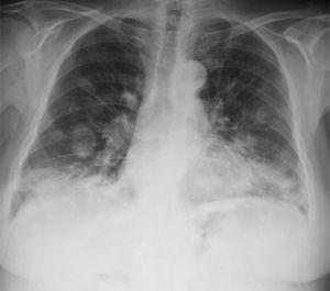 "Chest X-ray, showing a chance finding of images of bilateral nodules resembling a ""balloon release"", predominantly in the mid and lower fields."